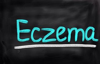 eczema-on-chalkboard.jpg