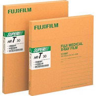 Fuji Xray Film 14 X 17 HRT Green Speed