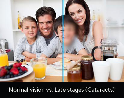 page-cataracts-sub.jpg