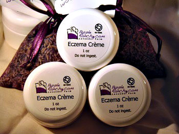 Our Eczema Crème is made with essential oils that are used for various skin issues including eczema and psoriasis.  This crème soothes the skin and relieves the itch and redness associated with these conditions.