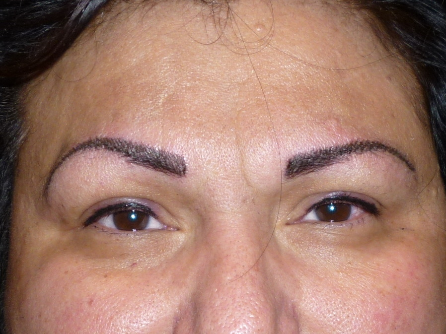 after-brow.jpg