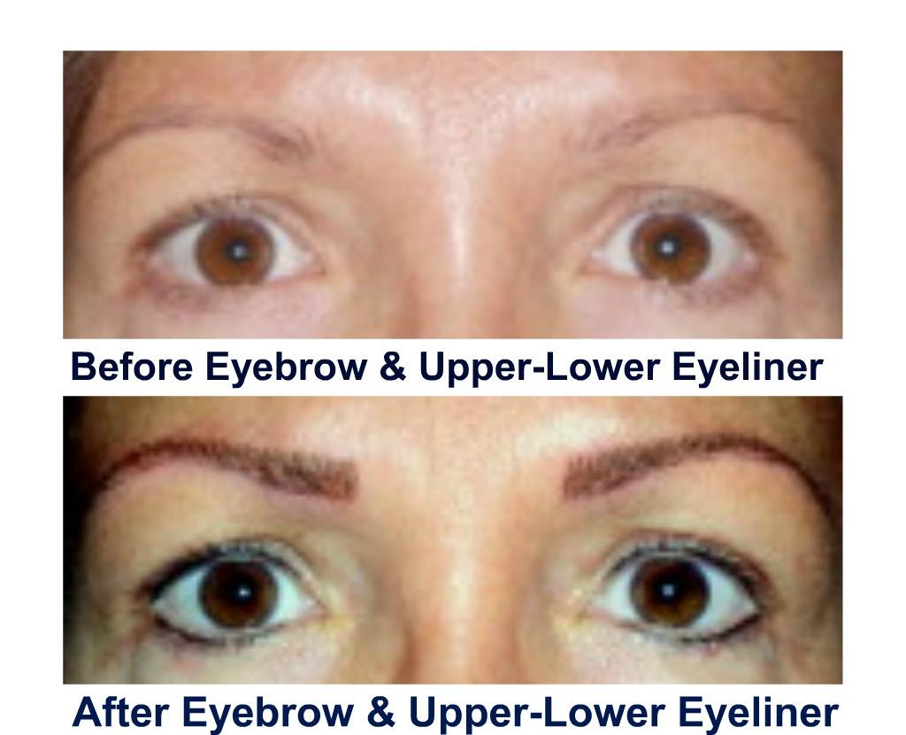 bef-af-brow-liner-collage.jpg