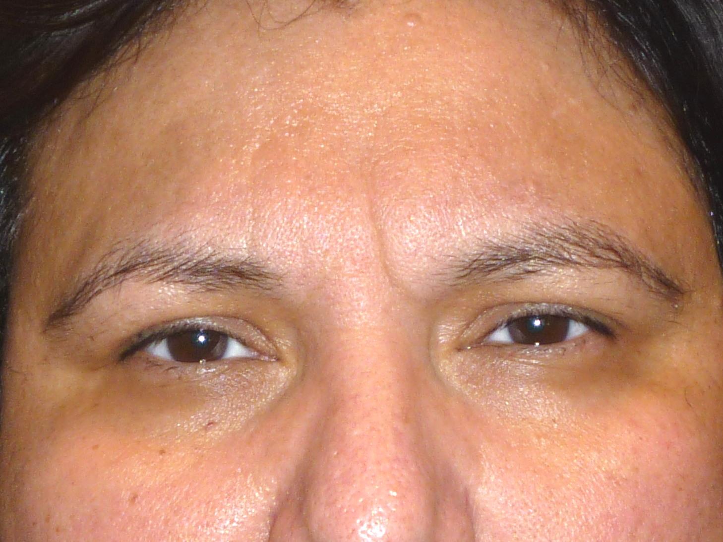 before-brow.jpg