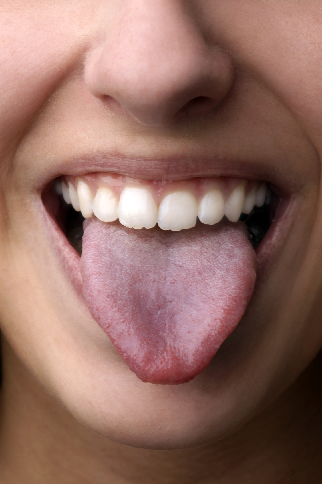Acid Reflux On Tongue Tongue and throat symptoms are