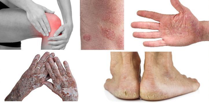 skin-treatment.jpg