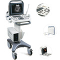 Sonoscape A6 Ultrasound System with 3 Transducers