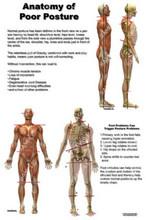 Anatomy of Poor Posture