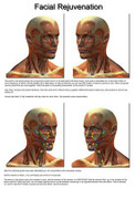 Facial Rejuvenation Reference Chart Included in Part Two Only