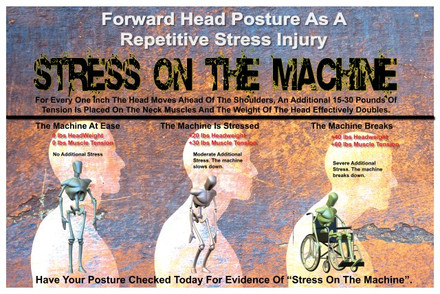 Perfect Poster to SHow FHP as a Repetitive Stress Injury