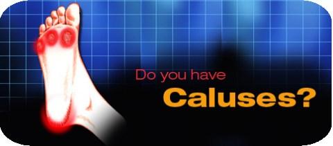 horizontal-caluses.jpg