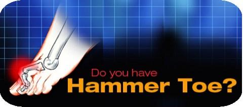 horizontal-hammer-toe-0.jpg