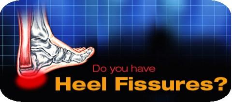 horizontal-heel-fissures.jpg
