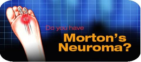 horizontal-morton-s-neuroma.jpg