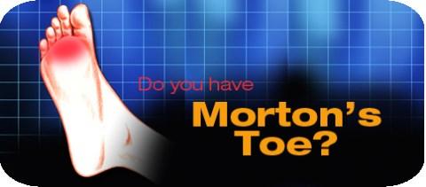 horizontal-morton-s-toe.jpg