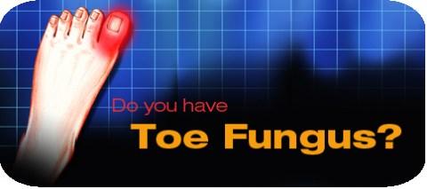 horizontal-toe-fungus.jpg