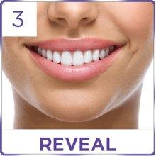 Trắng răng với miếng dán trắng răng Crest 3D