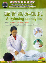 Ankylosing Spondylitis
