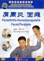 Periarthritis Humeroscapularis Facial Paralysis