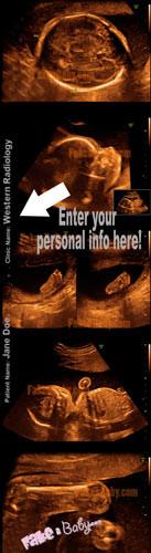 3D 4D Color Sonogram Enter your information for the best Gag Ultrasound
