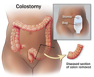 Illustration of a Colostomy