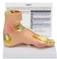 Gout Arthritis Foot Model