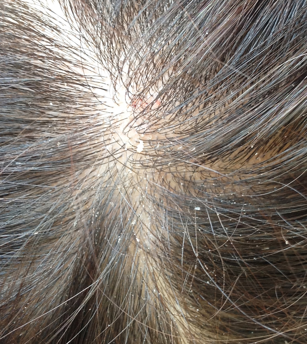 how to detect head lice in adults
