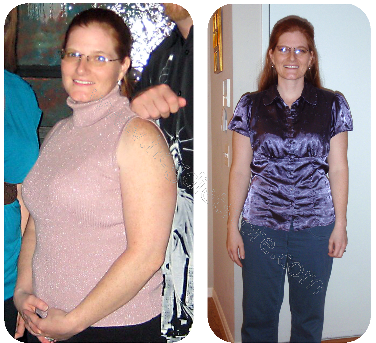 hcg diet before and after, hcg before and after, hcg weight loss before and after, before and after pictures for HCG