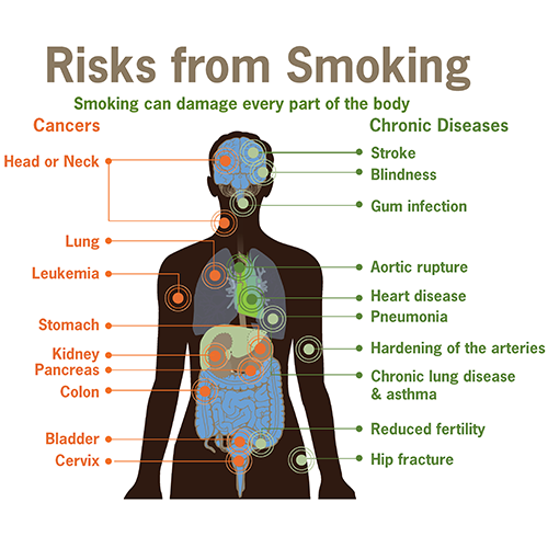 risks-form-smoking-smoking-can-damage-every-part-of-the-body.png