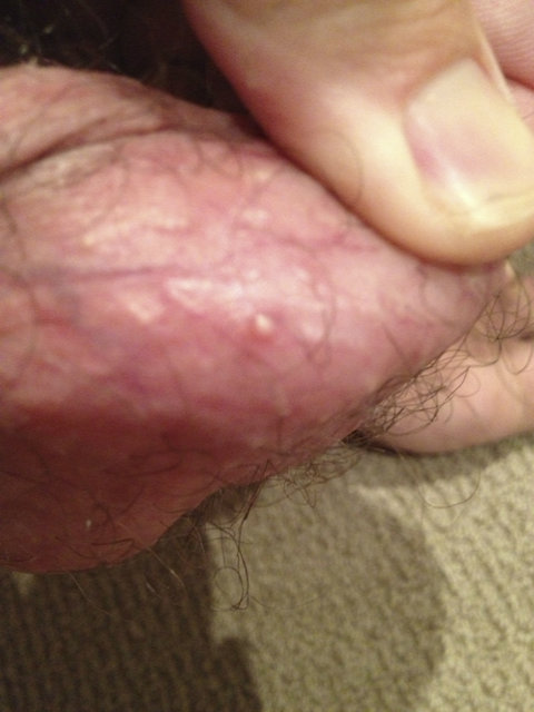 Pus Bumps On Penis