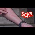 SCAR by Dan Alex - Video DOWNLOAD