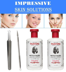 Thayers Alcohol-Free Rose Petal Witch Hazel with Aloe Vera, 12 OZ. PK/2 + Blackhead Remover Tool Kit Set 2 PCS Professional Surgical Stainless Steel Tweezer and Comedone Extractor