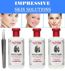 Thayers Alcohol-Free Rose Petal Witch Hazel with Aloe Vera, 12 OZ. PK/3 + Tweezer Blackhead Remover