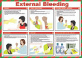 External Bleeding safety poster