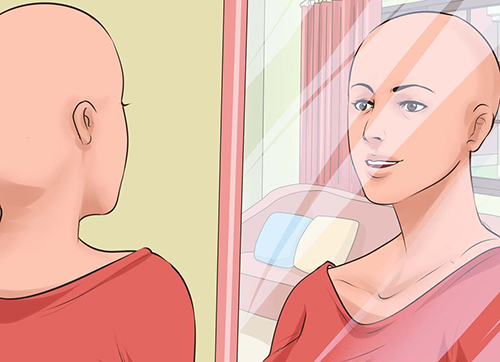 how to be confident with hairloss