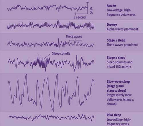 Sleep Stages Diagram