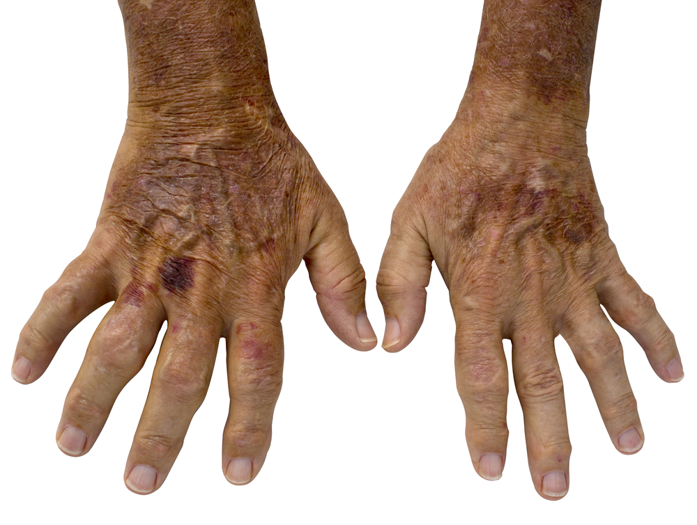 How to fade age spots on your hands