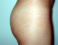 stretch-marks.jpg