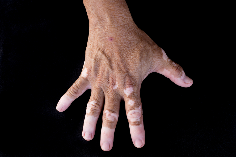 vitiligo on hand