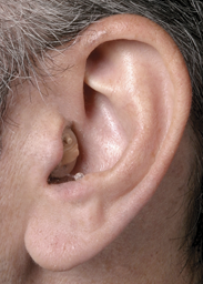 canal-in-ear.png