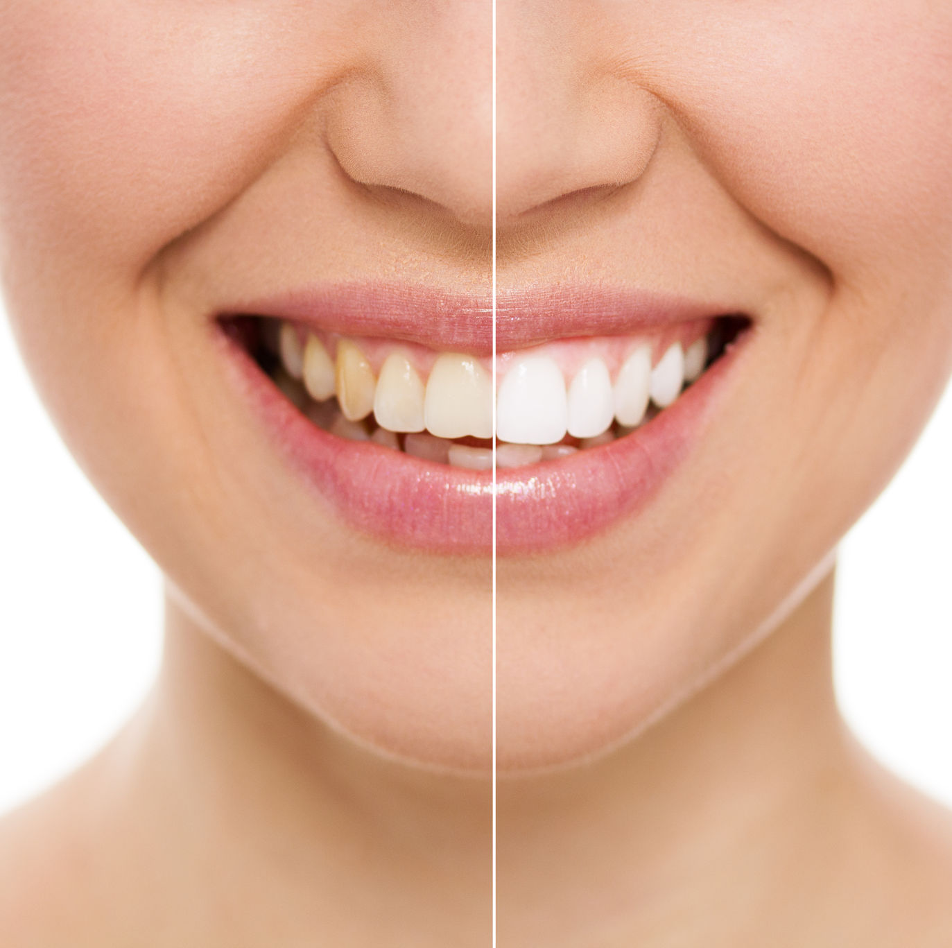 wsd-before-and-after-whitening-results.jpg