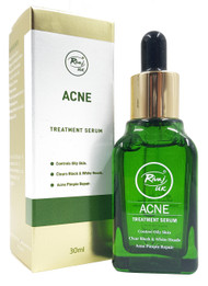 Rivaj UK Acne Treatment Serum 30 ml Buy online in Pakistan on Saloni.pk