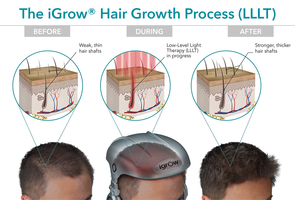 iGrow hands-free laser hair growth helmet - the hair growth process explained.
