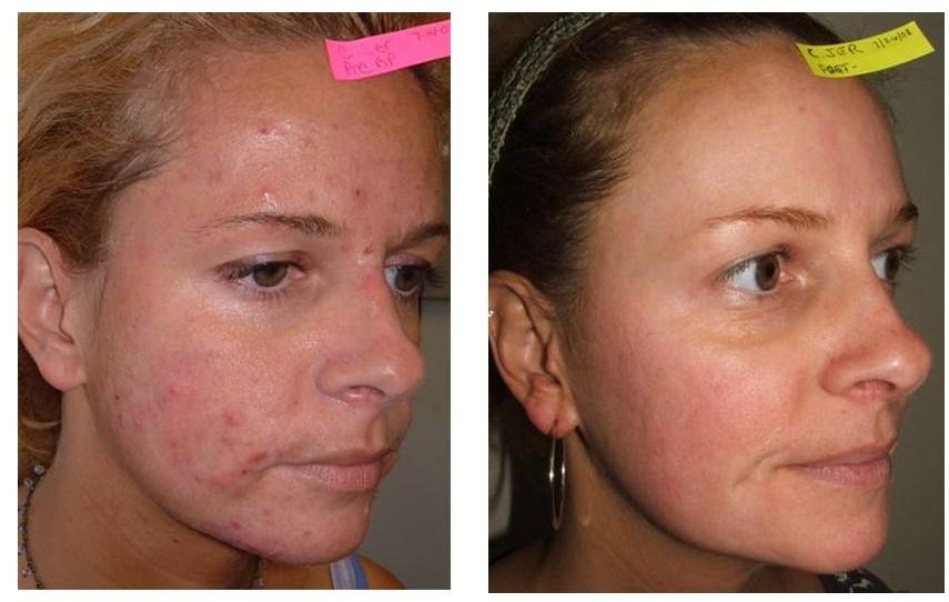 acne-b-a4.jpg