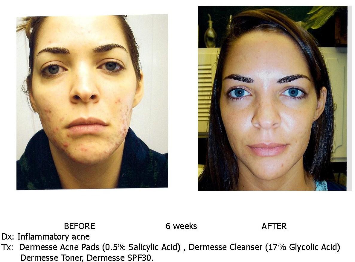 acne-pt-b-a3.jpg