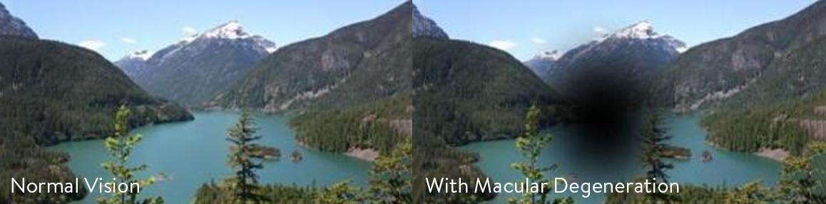 page-header-macular-degeneration.jpg