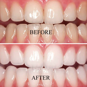 teeth-whitening-300x300.png