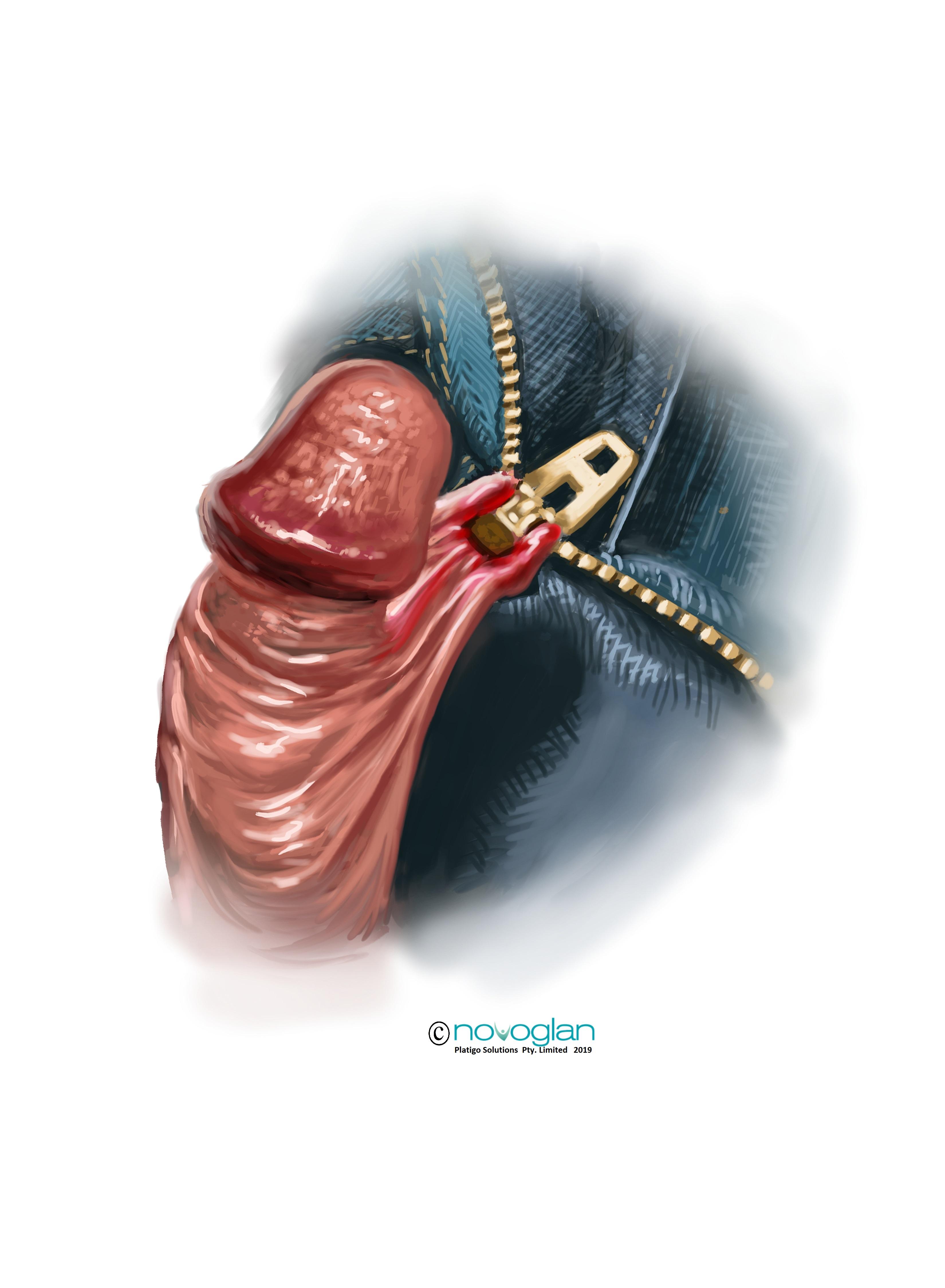 Foreskin-Zipper-Trauma-Treatment-with-novoglan