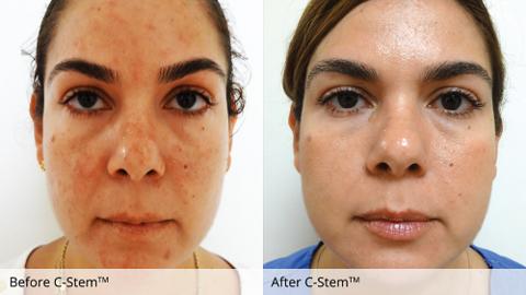 c-stem-karen-acne-rosacea.png