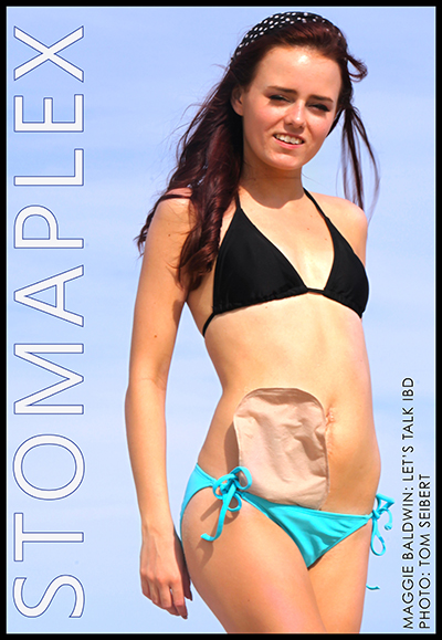 Ostomy belts for swimming with and ostomy bag. Ostomy model is wearing a bikini at the beach.