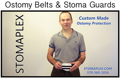 Men with an ostomy need to be able to wear blue jeans and return to work. The Stomaplex ostomy belt and stoma guard system allows for men to      tighten the belt on their pants over their stoma without restricting the flow from the stoma.